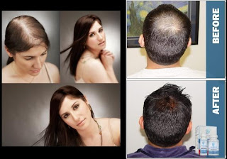 best hair loss treatment singapore review