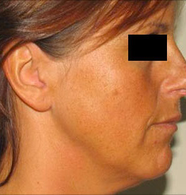 accent radio frequency treatment reviews