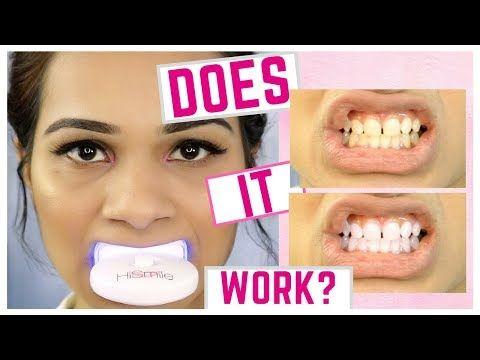 smile teeth whitening kit reviews